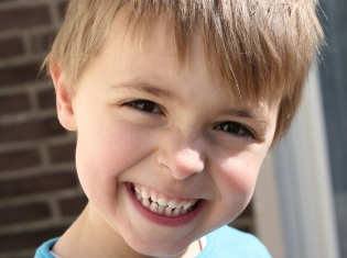 Preventing Dental Caries in Kids