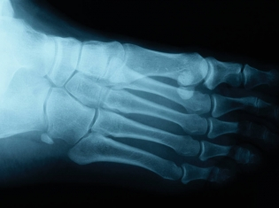 It Hurts — But Is an X-Ray Needed?