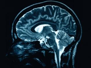 The Magnificent, Self-Repairing Brain