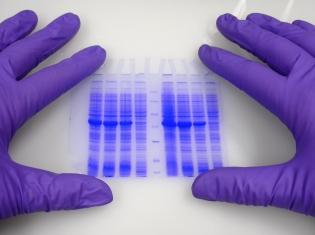 Molecular Way to Control Pancreatic Cancer
