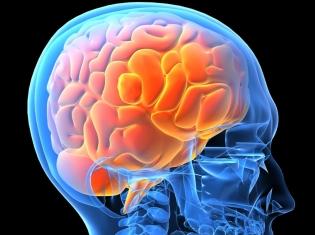 Identifying Risks for Brain Bleeds