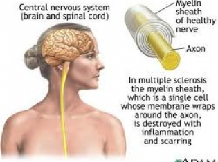 Potential Dangers of Multiple Sclerosis Treatment