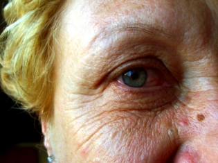 Vitamins for Old Eyes, But Not Omega-3s