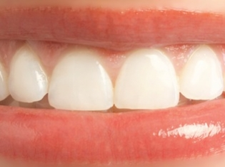 Oral Cancer Screening Updates