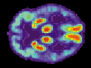 Memory Loss - Plaques or Genes?