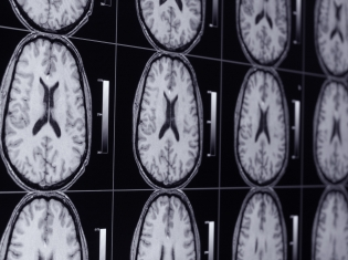 Hyperactive Brain Related to Depression