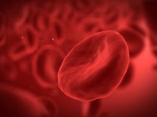 Reducing Heart Surgery Risks Using Less Blood