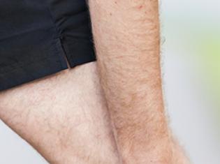 Risky Business of Osteoarthritis