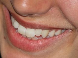 Got Arthritis? Take Care of Your Teeth