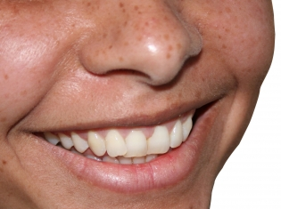 Some Smiles Might Hide Untreated Cavities