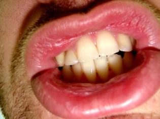 Dental and Mental Health Linked