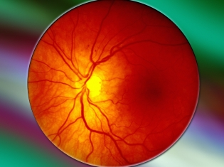 Blood Vessel Function Improved by Weight Loss