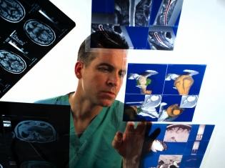 Misdiagnosis is Common for Creutzfeldt-Jakob Disease