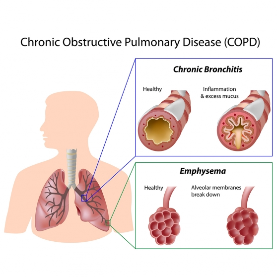 Fases copd