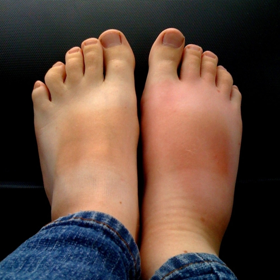 Swelling In Legs And Feet Congestive Heart Failure