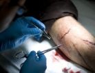 New Surgical Method for Inoperable Pancreatic Cancer?