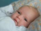 Jaundice in Newborns Was Fairly Common