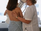 Earlier Hormone Replacement Therapy Linked to Breast Cancer