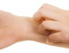 New Skin Reaction Warning for Seizure Rx