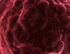Rx May Decrease Serious Transplant Side Effect