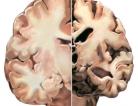 New Drug for Alzheimer's Disease