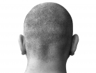 Traumatic Brain Injury Treatment Flops