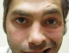 Treatment for Bell's Palsy