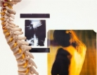 Boosting Bone Density and Extending Lives
