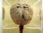 Imaging Tool Helped Predict Recovery from Brain Damage
