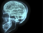 Search Still on for Better Brain Injury Treatments