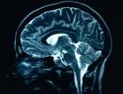 Experimental Stroke Drug Protects Brain
