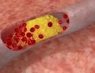 Heart Valve Disease Tied to Genetic Variants