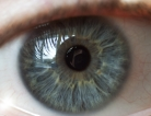 Blacks May Have Higher Risk for Diabetic Vision Loss