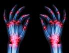Good News for Rheumatoid Arthritis Treatment