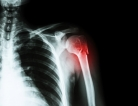 For Shoulder Dislocations, Surgery Might Help