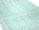 Silent Heart Disease Risk Factor Identified