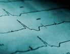 Prolonging ICD Shocks Safe