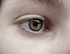 FDA Approves Rx for Diabetic Retinopathy
