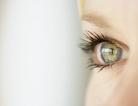 Rethinking Glaucoma:  Really a Brain Disorder?