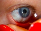 Antibiotic Improved Diabetic Eye Disease