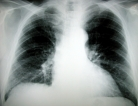 Lung Cancer Screening Not for Everyone