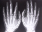Osteoporosis Screening Rate Was 'Unacceptably Low' in Men