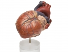 Post-Op Pain Common After Heart Surgery