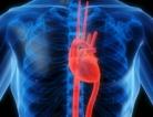 Heart Healthy Kidney Patients