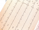 Faster Atrial Fibrillation Treatments Had Better Outcomes