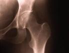 Rx Prevents Breast Cancer Survivor Bone Loss