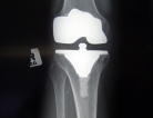 Partial Knee Replacement Seemed Safer but Failed More Than Total Replacement