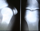 Joint Surgery Decline for RA Patients