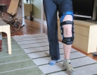 Knee Braces for Osteoarthritis Treatment