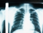 Why Lung Cancer is So Common and Who's at Risk